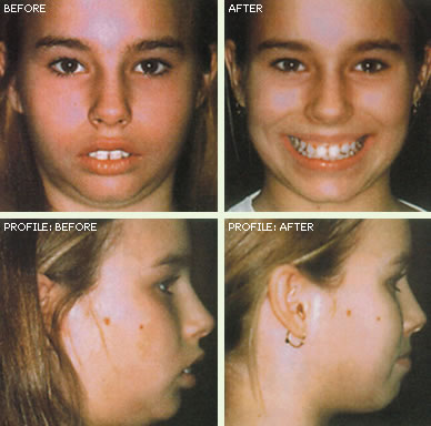 ortho-before-after-3