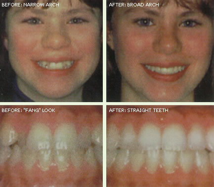 ortho-before-after-4